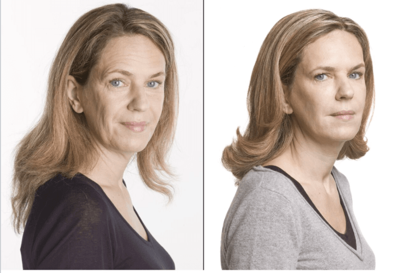Botox & Dermal Fillers Training Course | Level 4 | PTIFA