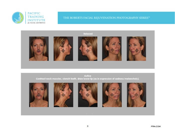 Photography series for Botox and facial rejuvenation