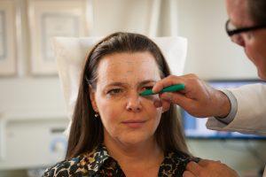 PTIFA Botox marking technqiue