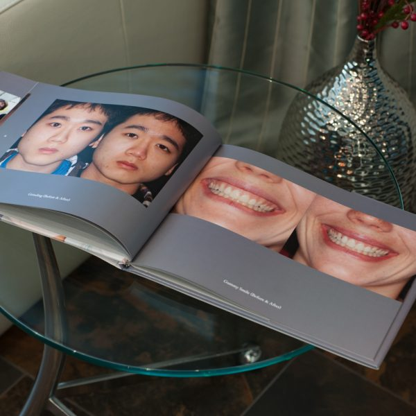 Facial_Rejuvenation_Book-9
