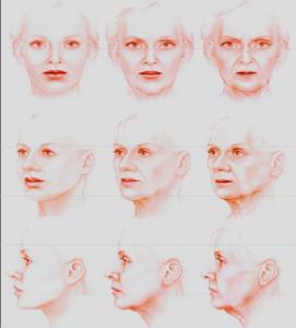 Facial aging process