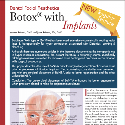 Botox with Implants