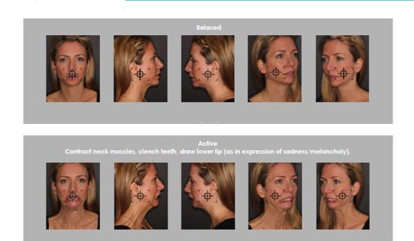 Roberts Facial Rejuvenation Photography™ series (syllabus)