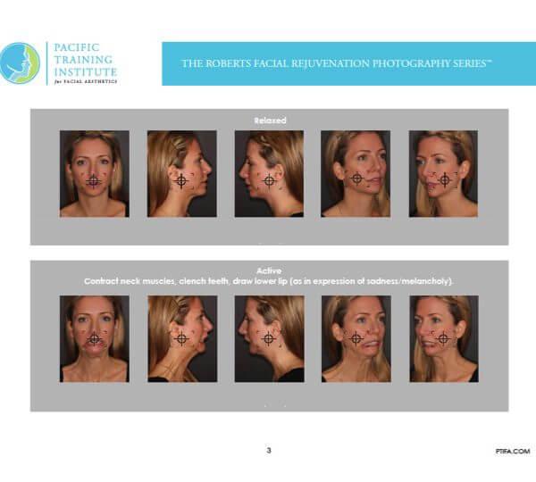 Roberts Facial Rejuvenation Photography series