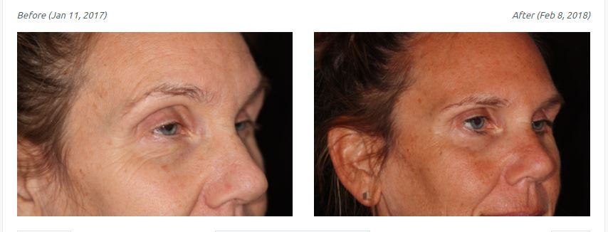 Botulinum Toxin: Not Just a Pretty Face - Pacific Training