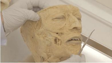botox-anatomy-head-and-neck