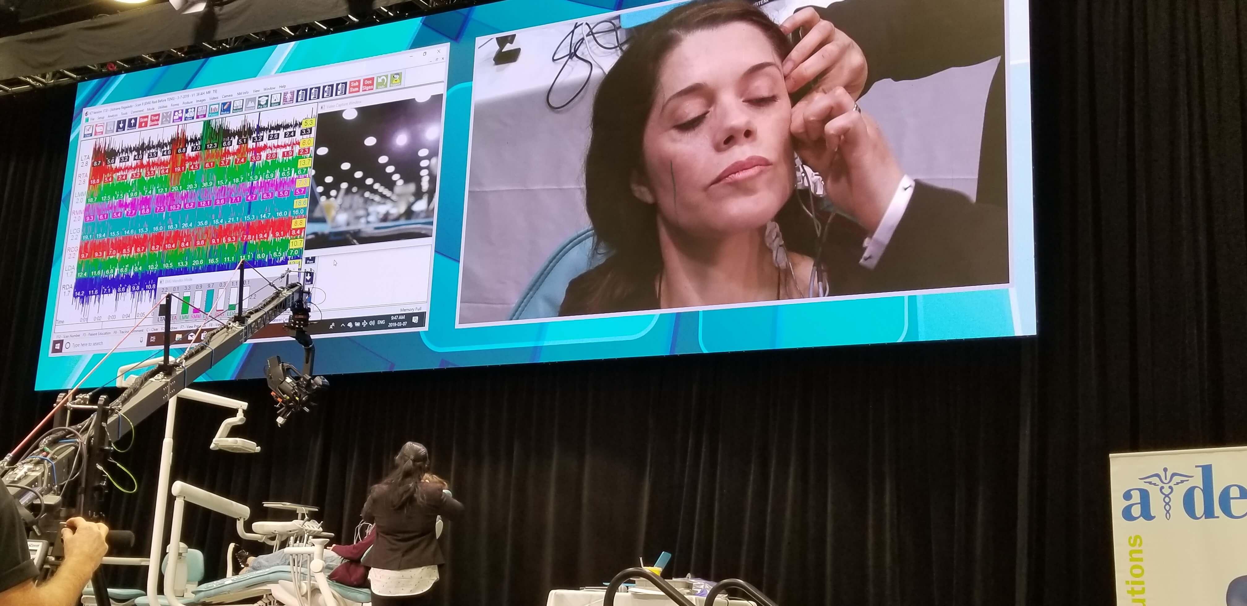 Botox EMG Demonstration