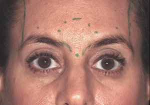 The PTIFA 7 injection sites for botox